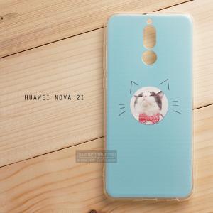 เคส Huawei NOVA 2i เคสนิ่ม TPU พิมพ์ลาย แบบที่ 17