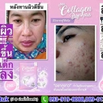 Miss Collagen Pure Plus