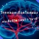 โรคหลอดเลือดในสมองภัยอันตราย-120นาทีหนีอัมพาต-บำรุงด้วยยาสมุนไพรจีน