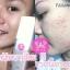 Acne Gel By deewa thumbnail 3
